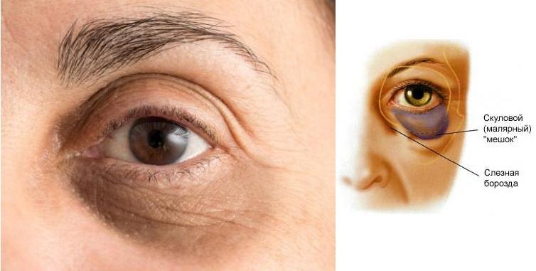 черные синяки под глазами
