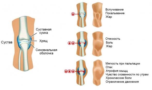 ушиб колена симптомы