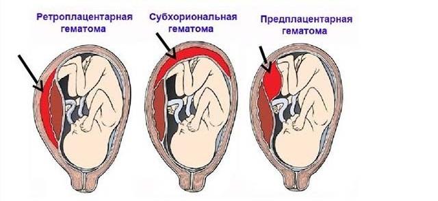Виды гематомы при беременности