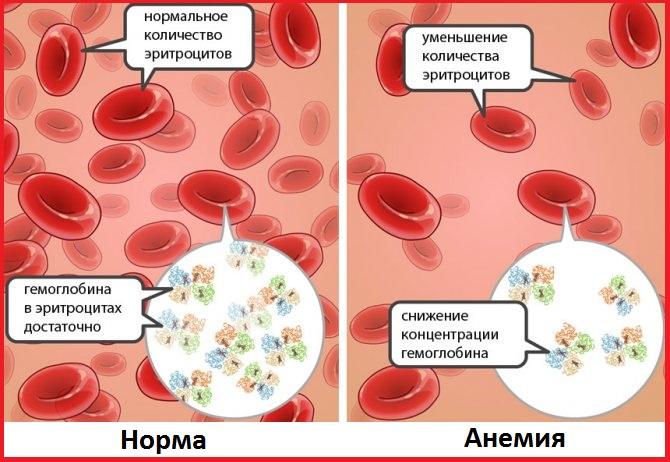 анемия у детей кровь