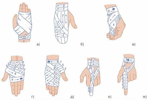 как забинтовать палец