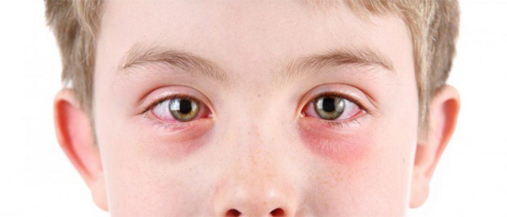 красные синяки под глазами у ребенка
