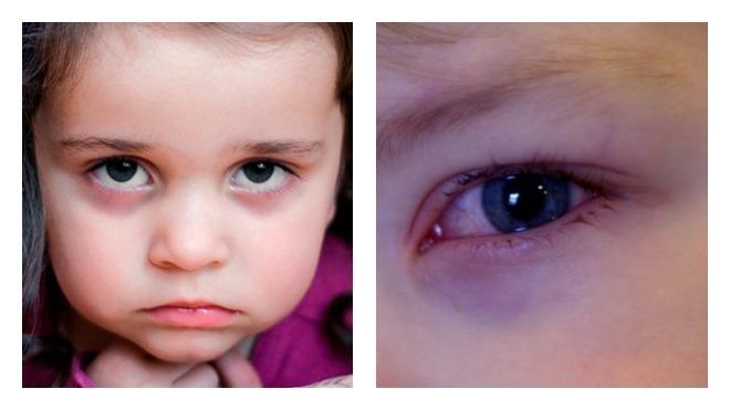 красные синяки под глазами