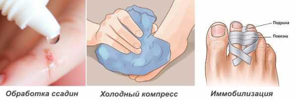 помощь при ушибе  пальца на ноге