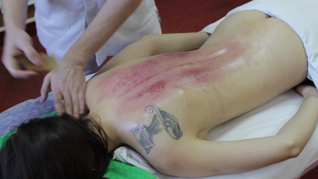 После массажа Гуаша