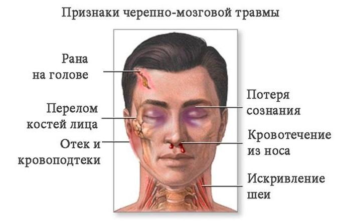 симптомы чмт
