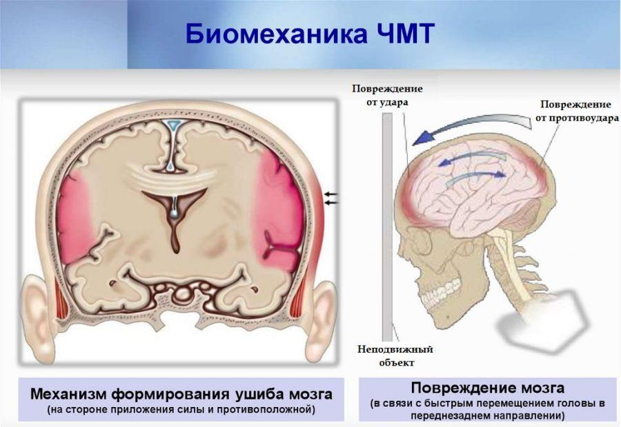 ушиб мозга