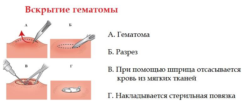 Вскрытие гематомы