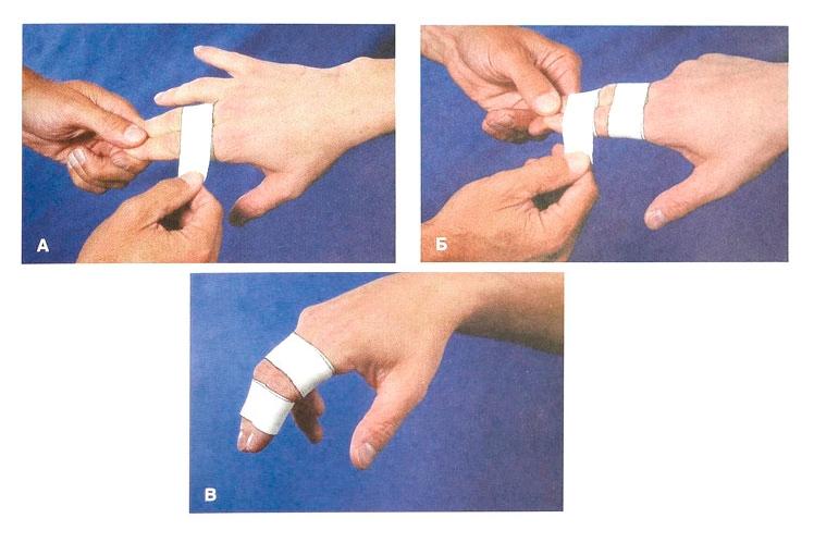 зафиксировать палец