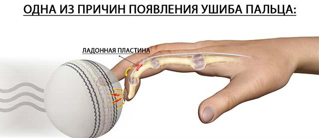 одна из причин ушиба ногтя