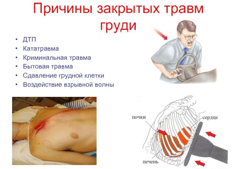 причины травмы грудной клетки