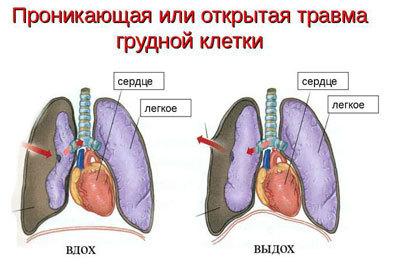 разрыв легкого обломком ребра