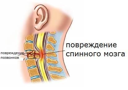 ушиб спинного спазма
