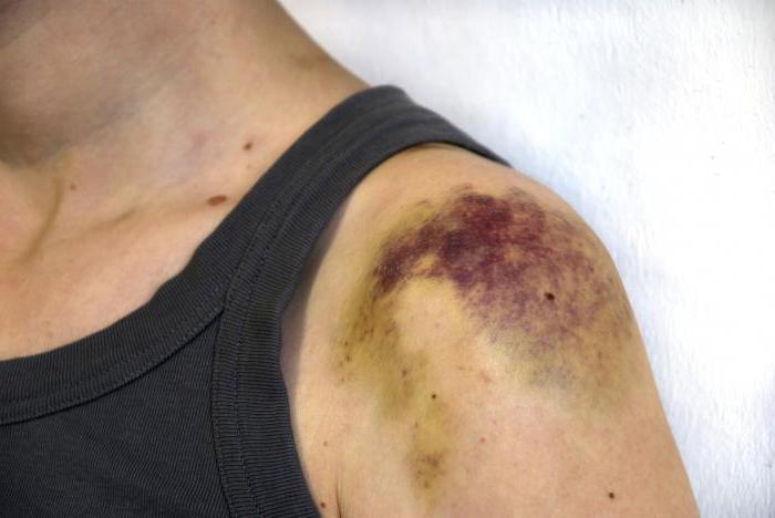 гематома плеча фото