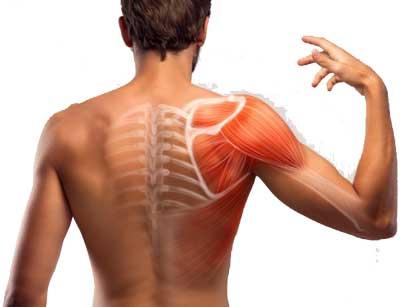 миозит плеча