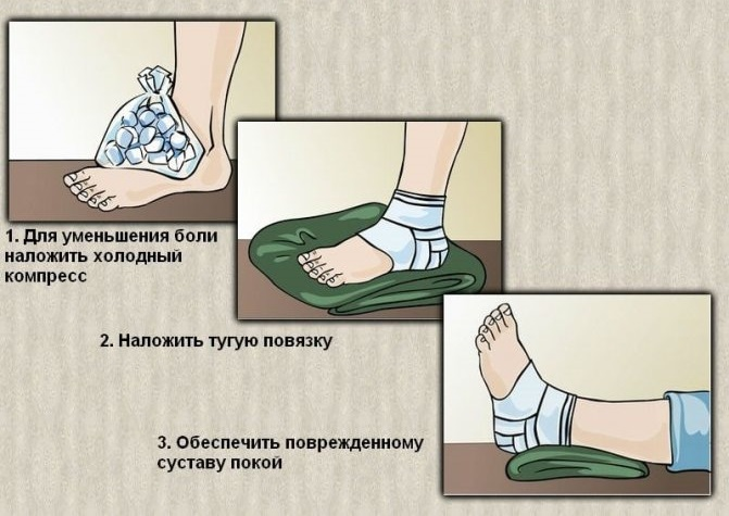 помощь при вывехе голеностопа-1