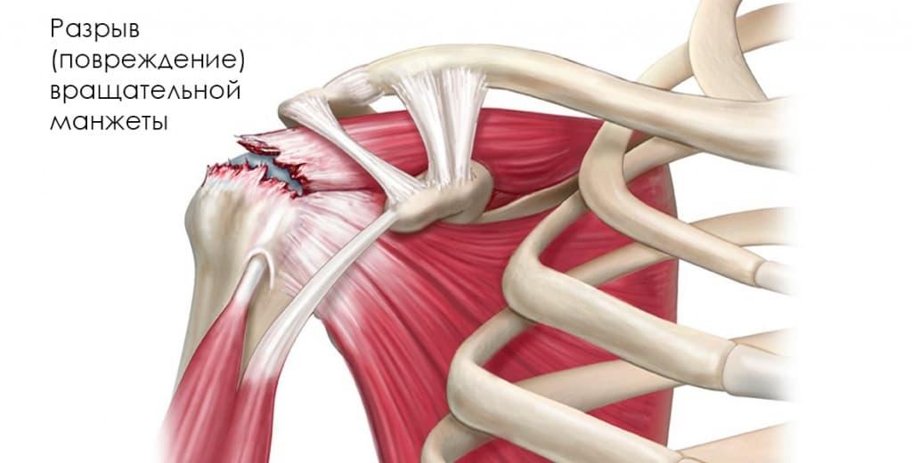 Повреждение ротаторной манжеты