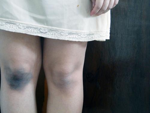 синяки на ногах у ребенка